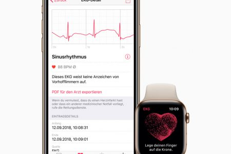 Elettrocardiogramma con Apple Watch?